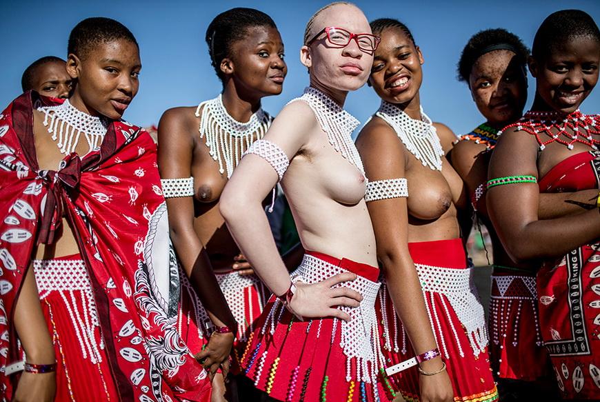 Девушка-альбинос из Южной Африки вместе с подругами перед фестивалем «Танец тростника». 5 сентября, Нонгома (ЮАР). Фото: Marco Longari / AFP