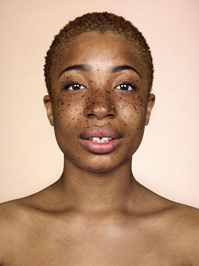 freckles-portrait-photography-brock-elbank-116__700